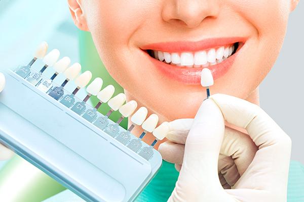 trattamenti estetici dentali